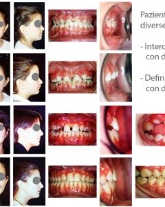 Trattamento ortodontico in due fasi