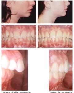 Ortodonzia degli adulti