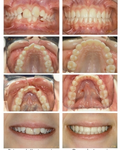 Ortodonzia intercettiva e definitiva