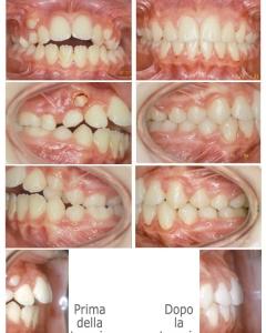 Ortodonzia degli adolescenti